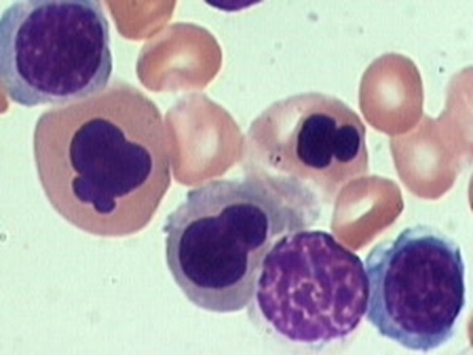 Displasia eritroide