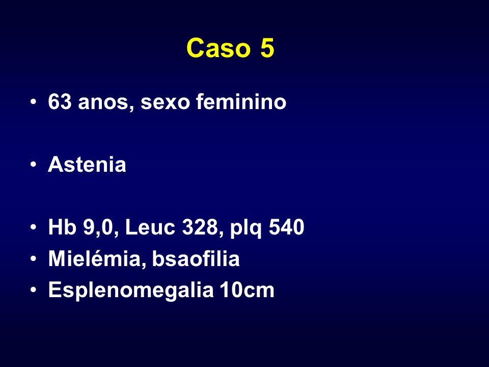 Caso 5 63 anos, sexo feminino Astenia Hb 9,0, Leuc 328, plq 540 Mielémia, bsaofilia Esplenomegalia 10cm