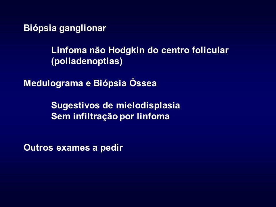 Biópsia ganglionar Linfoma não Hodgkin do centro folicular (poliadenoptias) Medulograma e Biópsia Óssea Sugestivos de mielodisplasia Sem infiltração por linfoma Outros exames a pedir