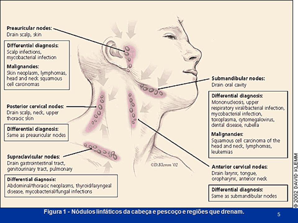 Figura 1 - Nódulos linfáticos da cabeça e pescoço e regiões que drenam. 5