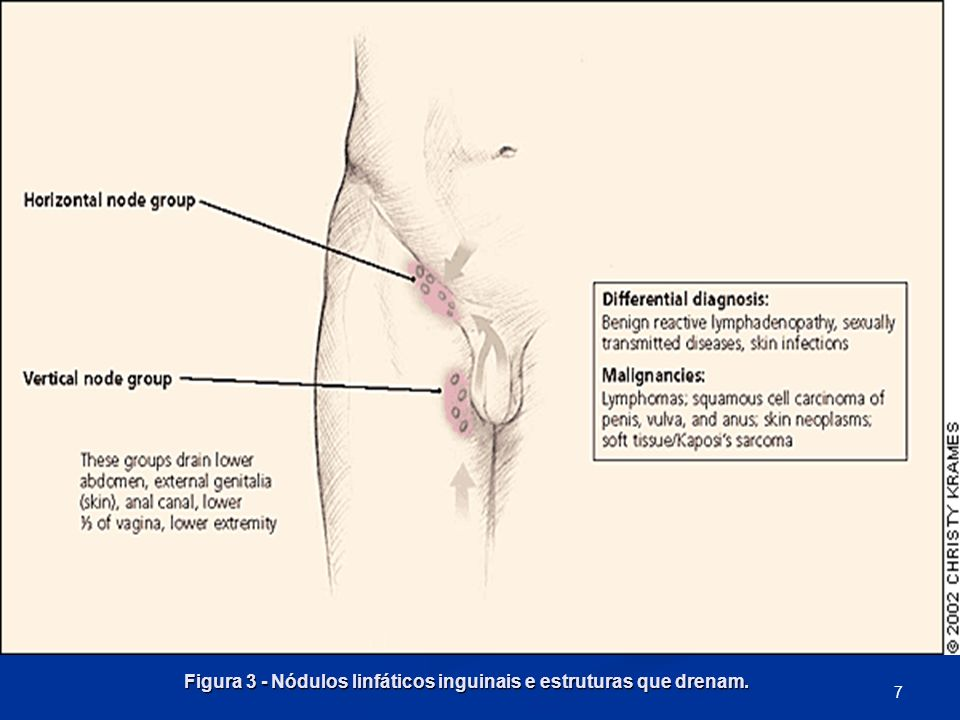 Figura 3 - Nódulos linfáticos inguinais e estruturas que drenam. 7