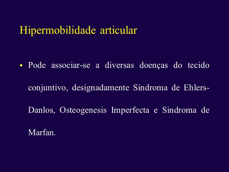 Hipermobilidade articular Pode associar-se a diversas doenças do tecido conjuntivo, designadamente Sindroma de Ehlers- Danlos, Osteogenesis Imperfecta