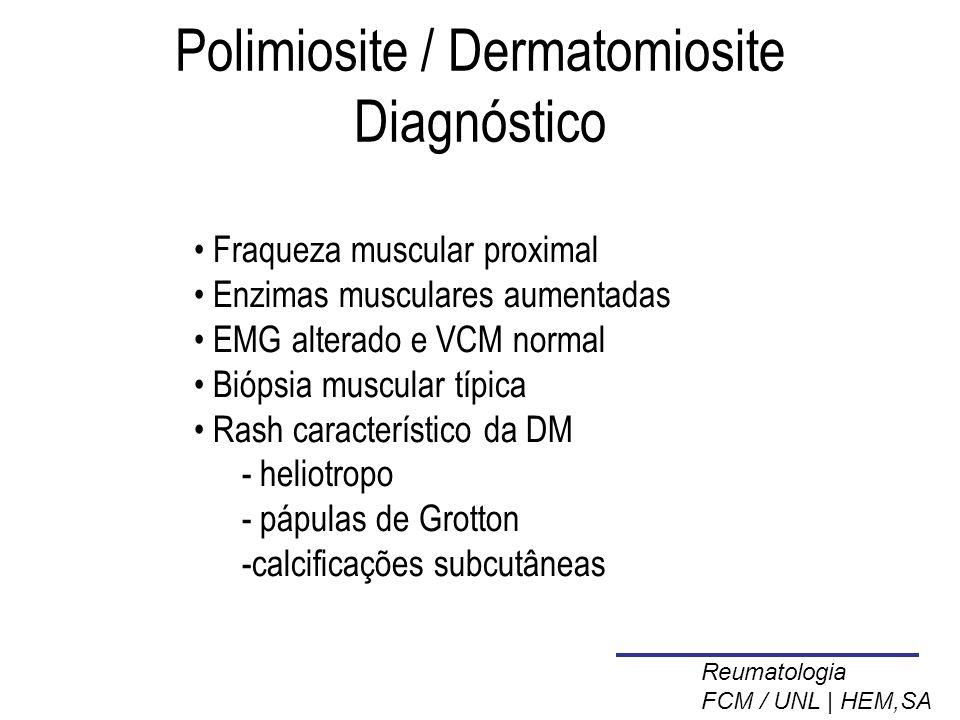 Polimiosite / Dermatomiosite Diagnóstico Fraqueza muscular proximal Enzimas musculares aumentadas EMG alterado e VCM normal Biópsia muscular típica Rash característico da DM  heliotropo  pápulas de Grotton calcificações subcutâneas Reumatologia FCM / UNL | HEM,SA