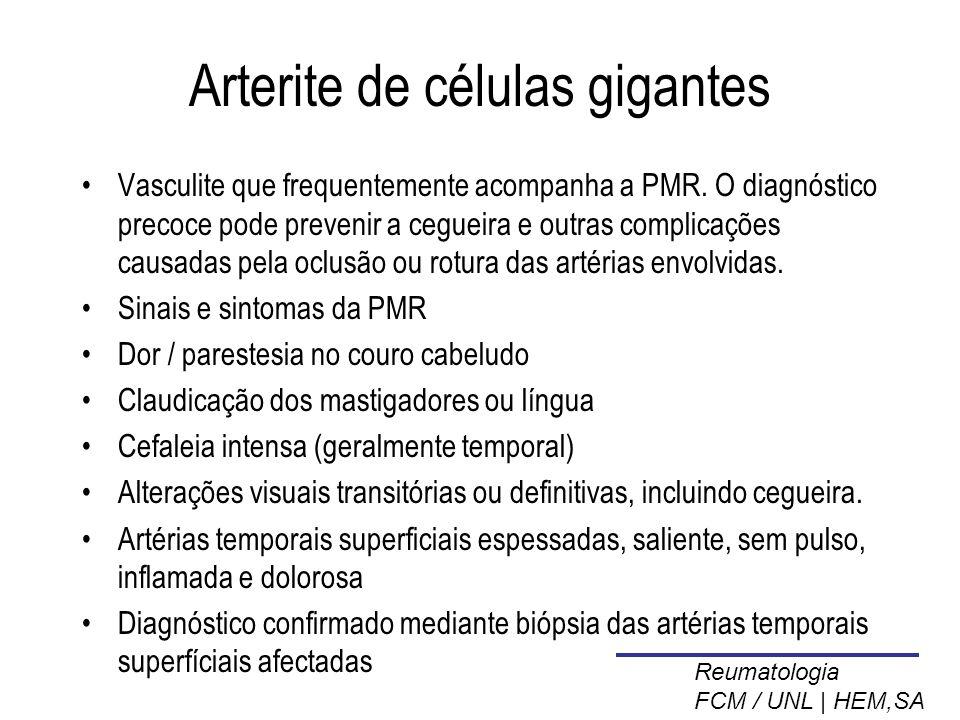 Arterite de células gigantes Vasculite que frequentemente acompanha a PMR.