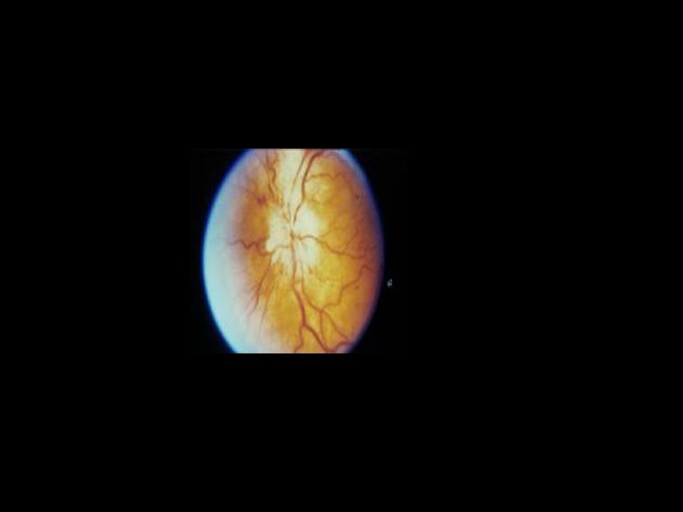 Neurite optica isquémica-PMR Arterite de células gigantes