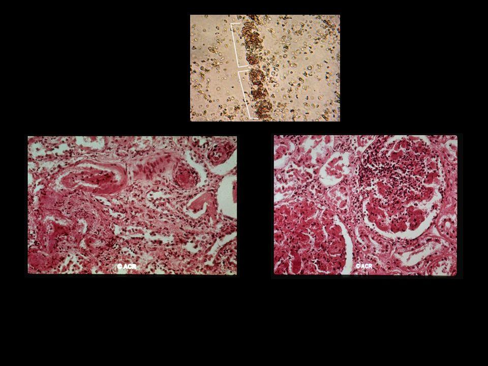 Infiltrado PMN Depositos de fibrina glomerulares Arterite necrotizante