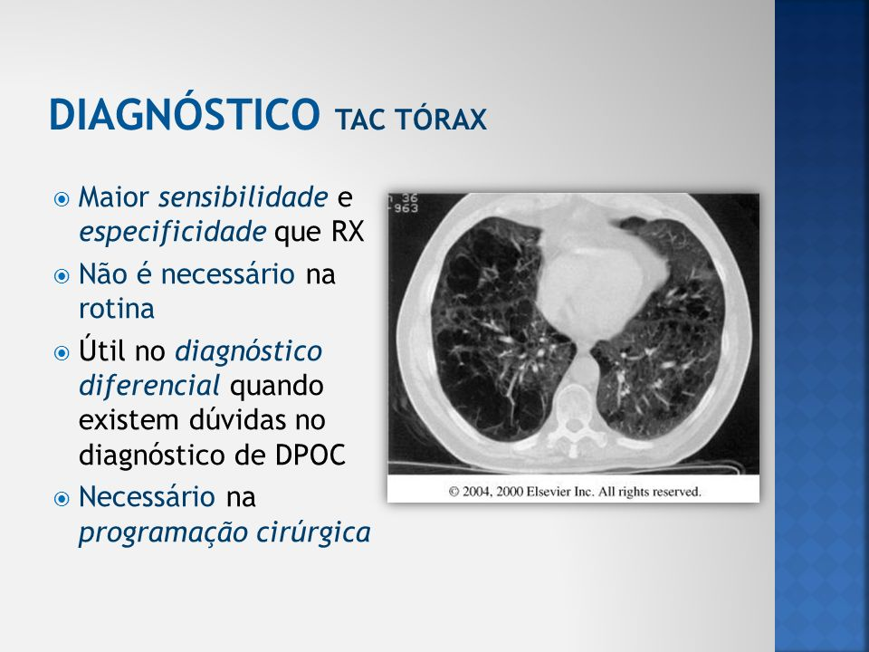 Maior sensibilidade e especificidade que RX Não é necessário na rotina Útil no diagnóstico diferencial quando existem dúvidas no diagnóstico de DPOC N