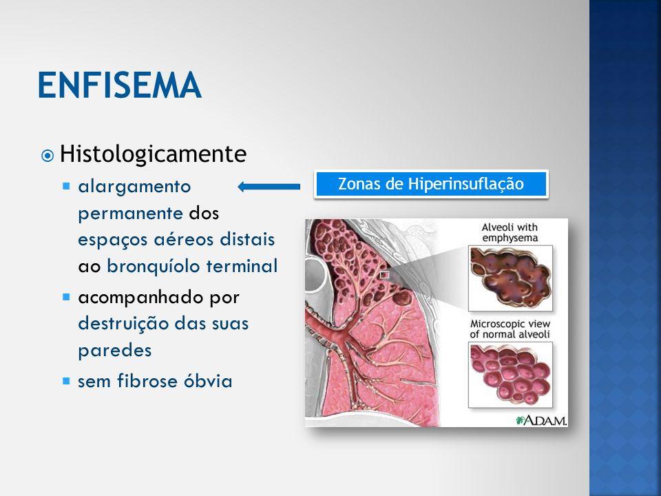 Bolhectomia excisão de grande bolha de enfisema quando compromete mais de 50% da área pulmonar Cirurgia reductora de volume pulmonar ressecção das áreas pulmonares mais afectadas pelo enfisema optimiza função das áreas remanescentes Transplante pulmonar casos graves seleccionados (sem resposta a outras opções terapêuticas) Risco pós-operatório de complicações pulmonares maior quanto mais próximo do diafragma menor com suspenção tabágica e optimização das terapêutica prévias