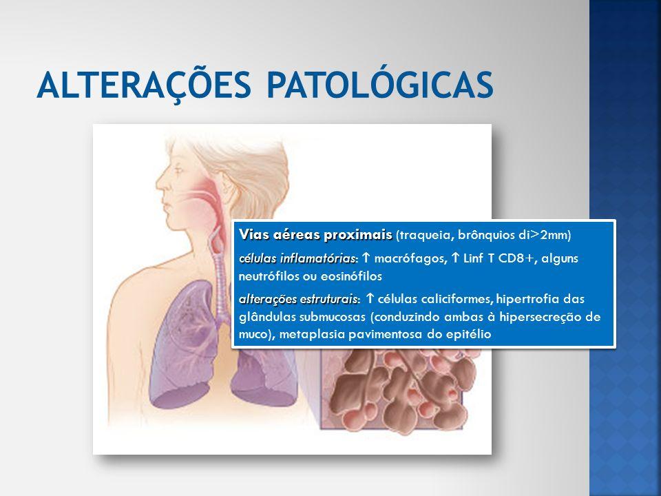 Vias aéreas periféricas Vias aéreas periféricas (bronquíolos di<2mm) células inflamatórias células inflamatórias: macrófagos, Linf T (CD8+>CD4+), Linf B, folículos linfoides, fibroblastos, alguns neutrófilos ou eosinófilos alterações estruturais alterações estruturais: espessamento da parede das vias aéreas, fibrose peribrônquica, exsudado inflamatório luminal, estreitamento das vias aéreas Exsudado e aumento da RI correlacionados com a severidade da doença Vias aéreas periféricas Vias aéreas periféricas (bronquíolos di<2mm) células inflamatórias células inflamatórias: macrófagos, Linf T (CD8+>CD4+), Linf B, folículos linfoides, fibroblastos, alguns neutrófilos ou eosinófilos alterações estruturais alterações estruturais: espessamento da parede das vias aéreas, fibrose peribrônquica, exsudado inflamatório luminal, estreitamento das vias aéreas Exsudado e aumento da RI correlacionados com a severidade da doença