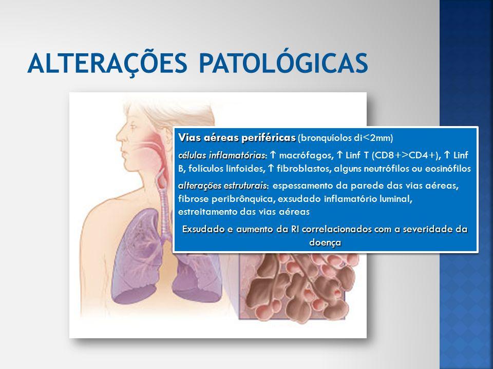 Parênquima pulmonar Parênquima pulmonar (bronquiolos respiratórios e alvéolos) células inflamatórias células inflamatórias: macrófagos, Linf T CD8+ alterações estruturais alterações estruturais: destruição da parede alveolar, apoptose das células epiteliais e endoteliais Enfisema centrolobular: dilatação e destruição dos bronquíolos respiratórios; mais comum em fumadores Enfisema panacinar: destruição dos sacos alveolares bem com dos bronquíolos respiratórios; mais comum em doentes com défice de α 1-antitrisina Parênquima pulmonar Parênquima pulmonar (bronquiolos respiratórios e alvéolos) células inflamatórias células inflamatórias: macrófagos, Linf T CD8+ alterações estruturais alterações estruturais: destruição da parede alveolar, apoptose das células epiteliais e endoteliais Enfisema centrolobular: dilatação e destruição dos bronquíolos respiratórios; mais comum em fumadores Enfisema panacinar: destruição dos sacos alveolares bem com dos bronquíolos respiratórios; mais comum em doentes com défice de α 1-antitrisina
