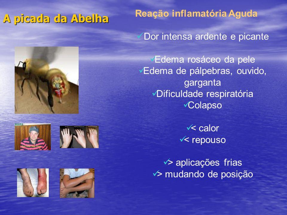 A picada da Abelha Reação inflamatória Aguda Dor intensa ardente e picante Edema rosáceo da pele Edema de pálpebras, ouvido, garganta Dificuldade resp