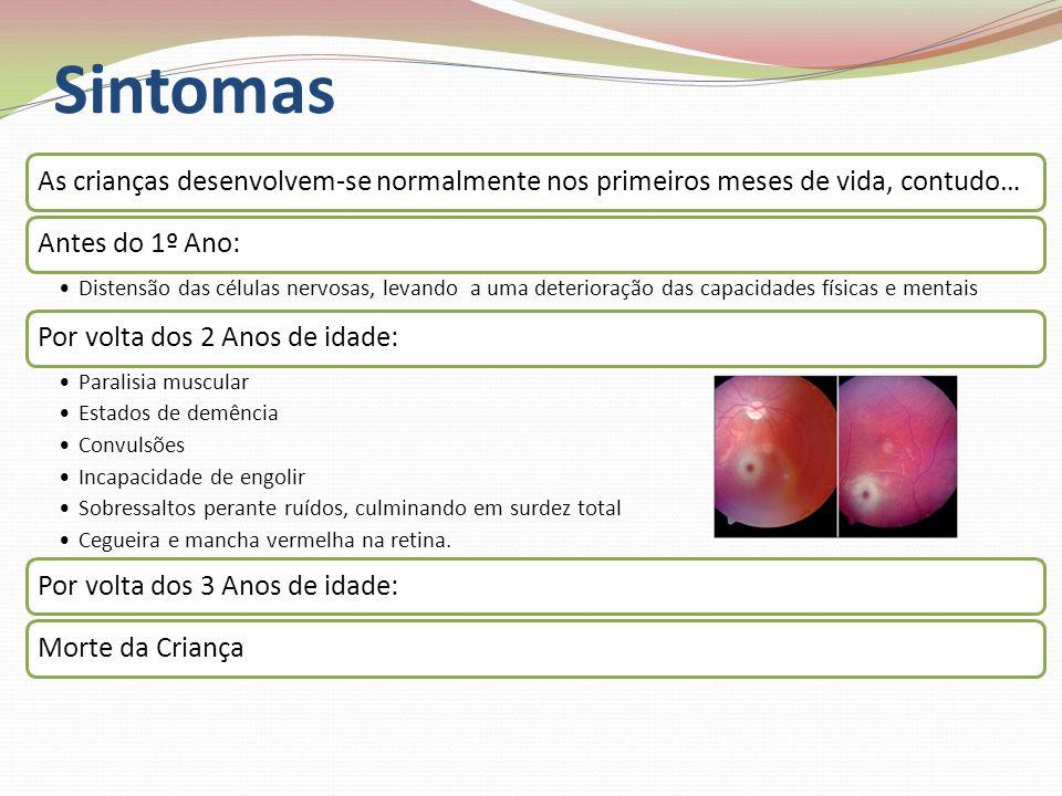 . Diagnóstico Durante o desenvolvimento fetal Análise do líquido amniótico obtido por amniocentese, para se testar a actividade da -N-acetil hexosaminidase A Depois de a criança nascer Testes Neurológicos Testes Físicos Testes Bioquímicos à urina, soro e leucócitos, que demonstrarão a redução ou a ineficiência da enzima