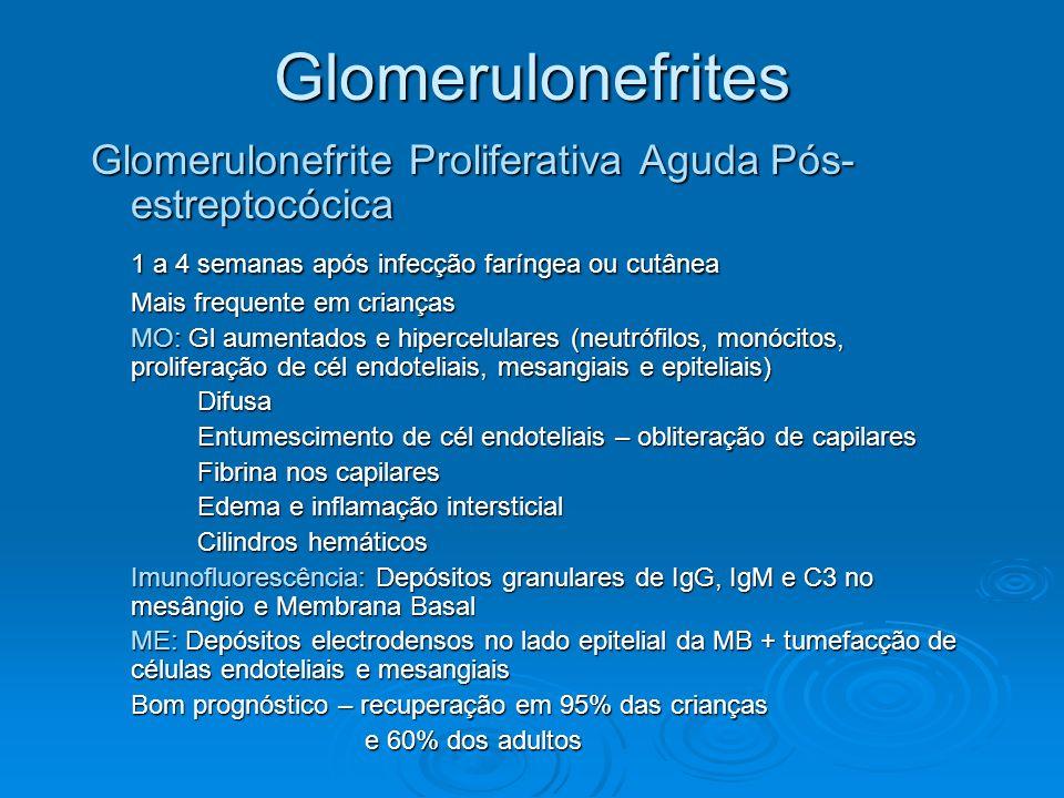 Glomerulonefrites Glomerulonefrite Proliferativa Aguda Pós- estreptocócica 1 a 4 semanas após infecção faríngea ou cutânea Mais frequente em crianças