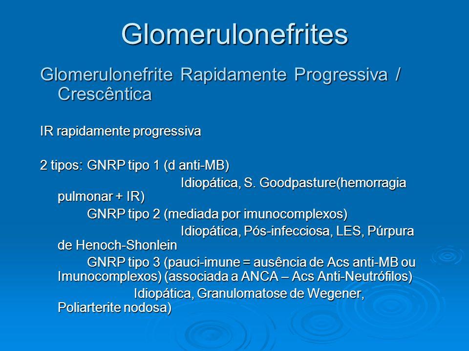 Glomerulonefrites Glomerulonefrite Rapidamente Progressiva / Crescêntica IR rapidamente progressiva 2 tipos:GNRP tipo 1 (d anti-MB) Idiopática, S. Goo