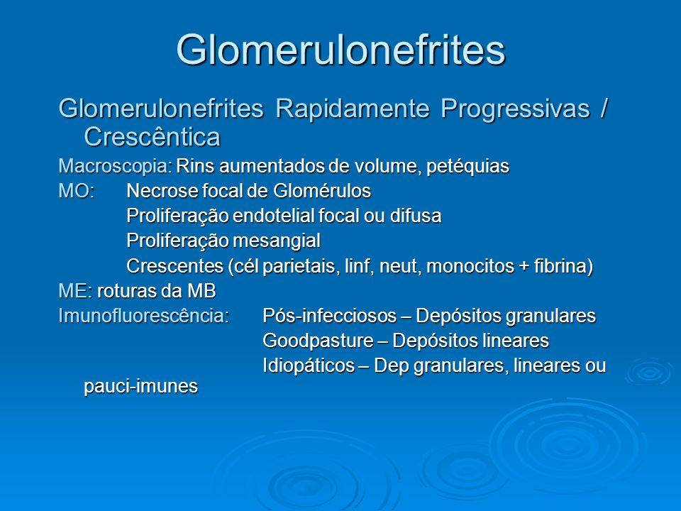 Glomerulonefrites Glomerulonefrites Rapidamente Progressivas / Crescêntica Macroscopia: Rins aumentados de volume, petéquias MO: Necrose focal de Glom