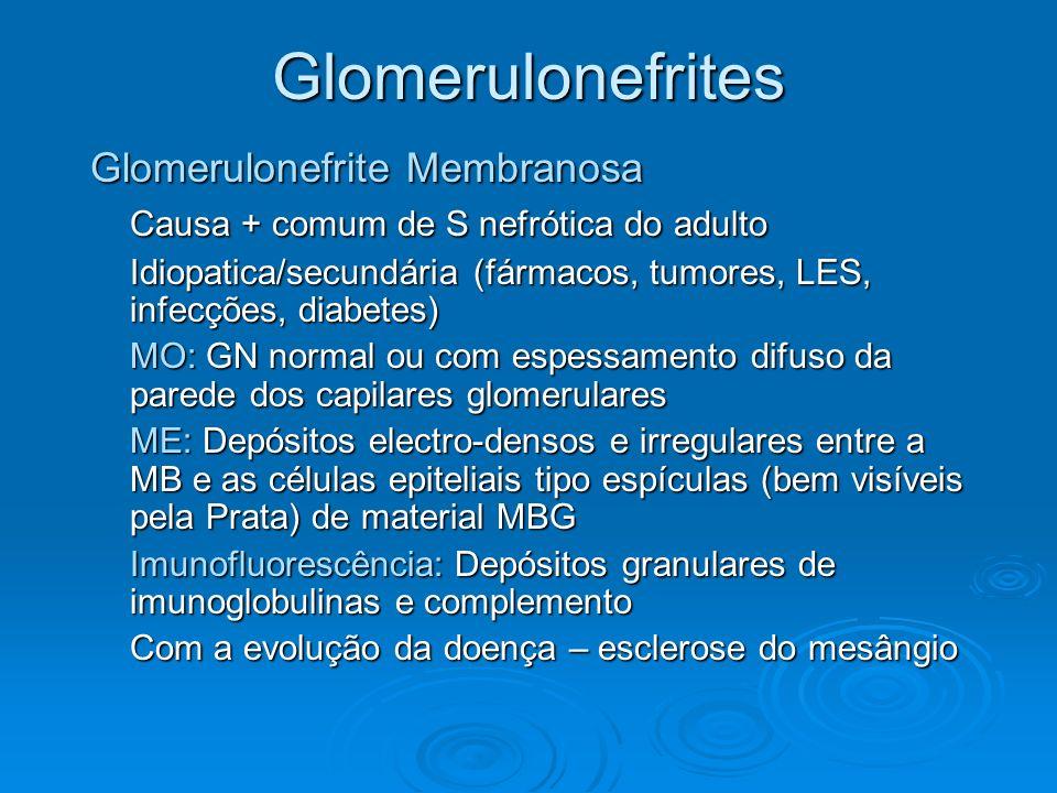 Glomerulonefrites Glomerulonefrite Membranosa Causa + comum de S nefrótica do adulto Idiopatica/secundária (fármacos, tumores, LES, infecções, diabete