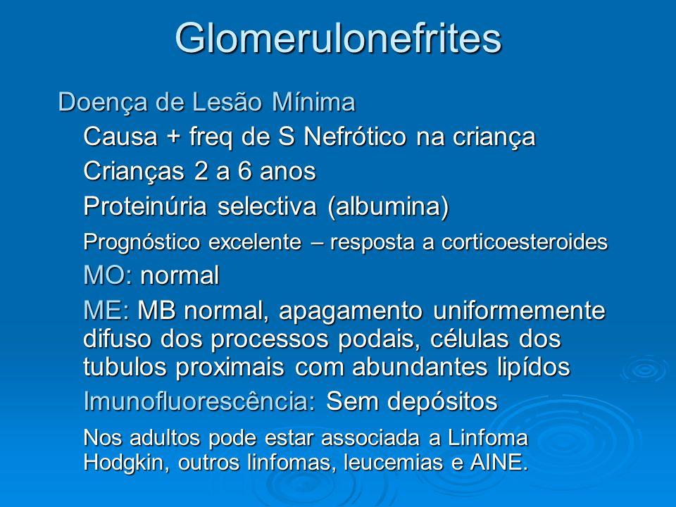Glomerulonefrites Doença de Lesão Mínima Causa + freq de S Nefrótico na criança Crianças 2 a 6 anos Proteinúria selectiva (albumina) Prognóstico excel