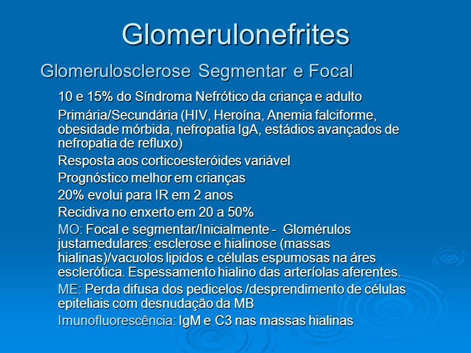 Glomerulonefrites Glomerulosclerose Segmentar e Focal 10 e 15% do Síndroma Nefrótico da criança e adulto Primária/Secundária (HIV, Heroína, Anemia fal
