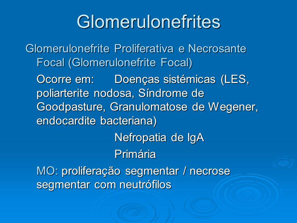 Glomerulonefrites Glomerulonefrite Proliferativa e Necrosante Focal (Glomerulonefrite Focal) Ocorre em: Doenças sistémicas (LES, poliarterite nodosa,