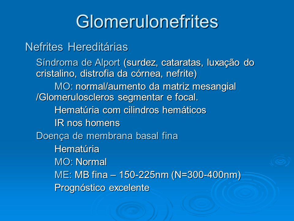 Glomerulonefrites Nefrites Hereditárias Síndroma de Alport (surdez, cataratas, luxação do cristalino, distrofia da córnea, nefrite) MO: normal/aumento