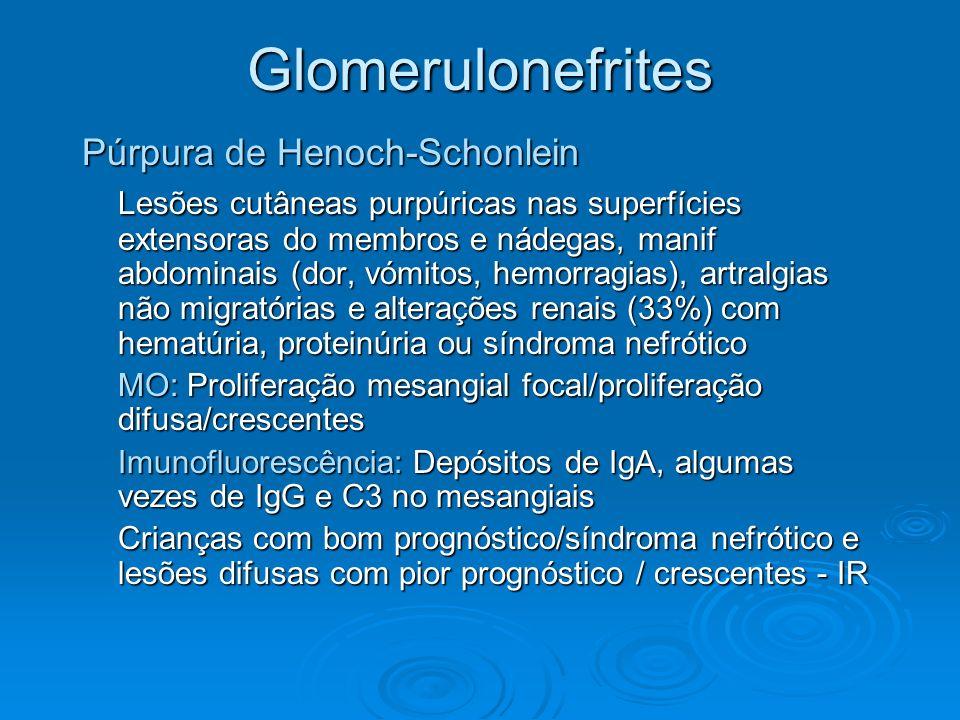 Glomerulonefrites Púrpura de Henoch-Schonlein Lesões cutâneas purpúricas nas superfícies extensoras do membros e nádegas, manif abdominais (dor, vómit