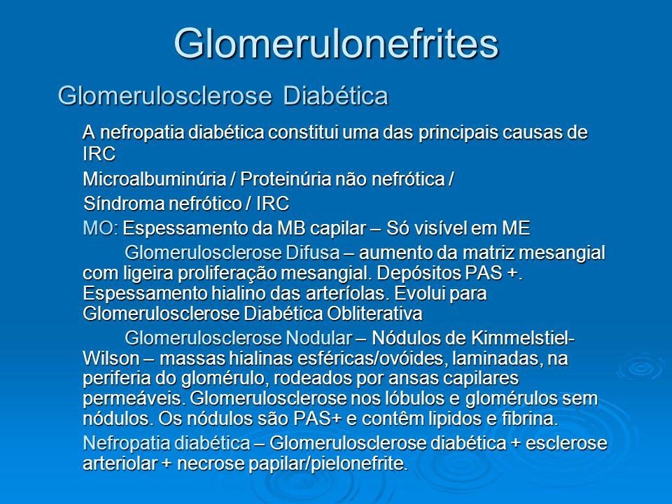 Glomerulonefrites Glomerulosclerose Diabética A nefropatia diabética constitui uma das principais causas de IRC Microalbuminúria / Proteinúria não nef