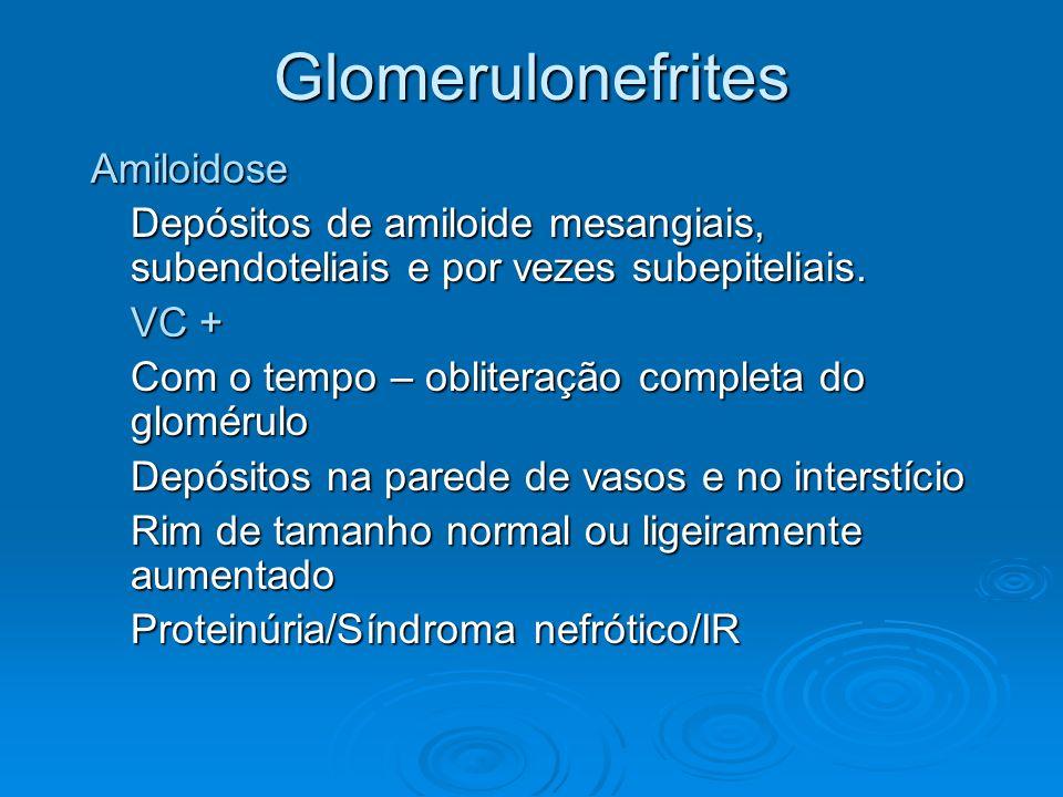 Glomerulonefrites Amiloidose Depósitos de amiloide mesangiais, subendoteliais e por vezes subepiteliais. VC + Com o tempo – obliteração completa do gl