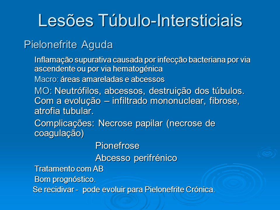 Lesões Túbulo-Intersticiais Pielonefrite Aguda Inflamação supurativa causada por infecção bacteriana por via ascendente ou por via hematogénica Macro: