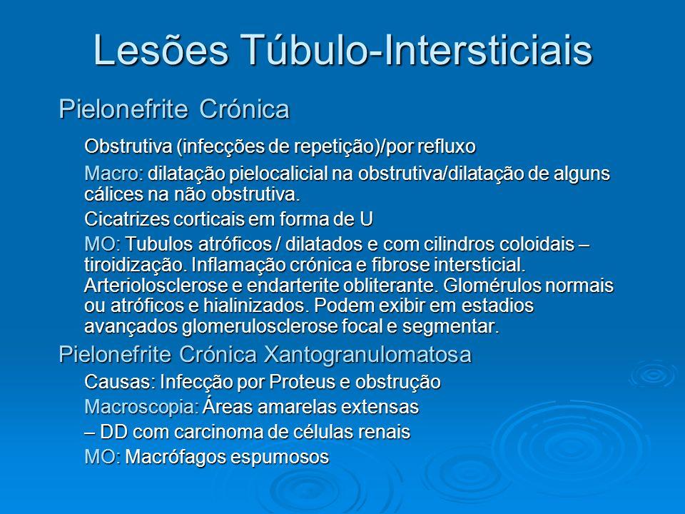 Lesões Túbulo-Intersticiais Pielonefrite Crónica Obstrutiva (infecções de repetição)/por refluxo Macro: dilatação pielocalicial na obstrutiva/dilataçã
