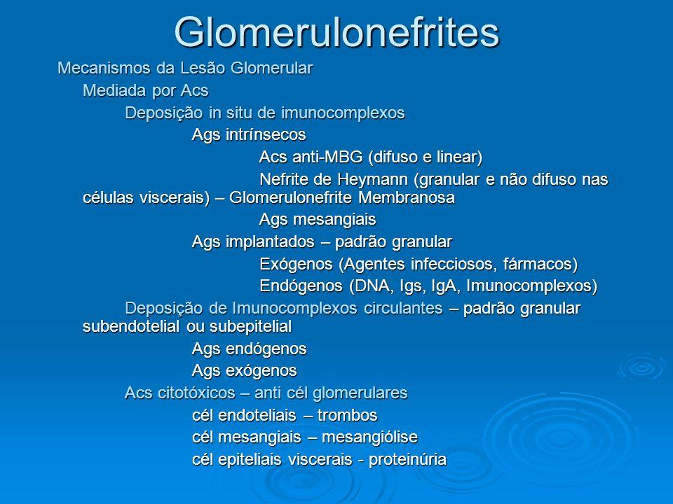 Glomerulonefrites Mecanismos da Lesão Glomerular Mediada por Acs Deposição in situ de imunocomplexos Ags intrínsecos Acs anti-MBG (difuso e linear) Ne