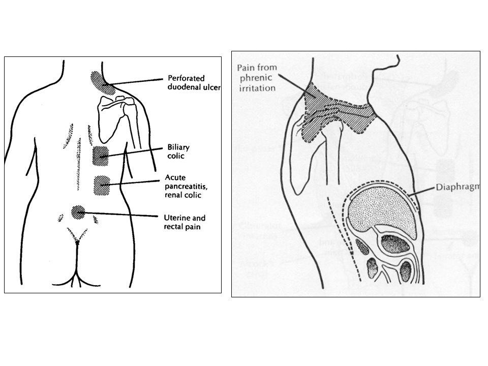 Modulação da dor – Variabilidade subjectiva da intensidade dolorosa : Transmissão da mensagem dolorosa ao tálamo (cortex somatosensitivo e frontal) Modulação dos neurónios da raiz dorsal, pela via descendente (com receptores de opióides)