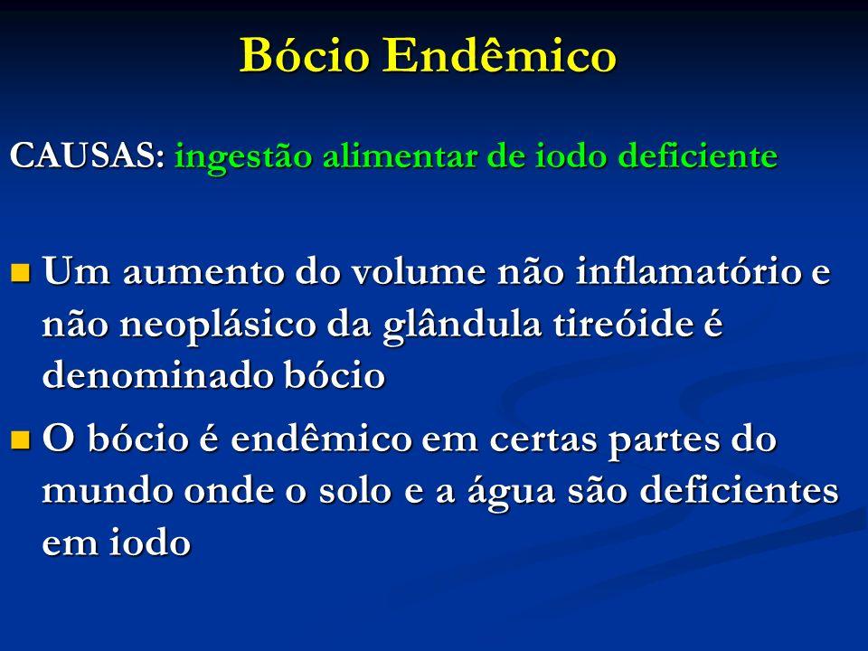 Bócio Endêmico CAUSAS: ingestão alimentar de iodo deficiente Um aumento do volume não inflamatório e não neoplásico da glândula tireóide é denominado