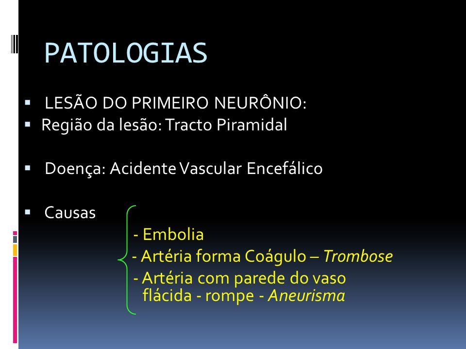 PATOLOGIAS LESÃO DO PRIMEIRO NEURÔNIO: Região da lesão: Tracto Piramidal Doença: Acidente Vascular Encefálico Causas - Embolia - Artéria forma Coágulo