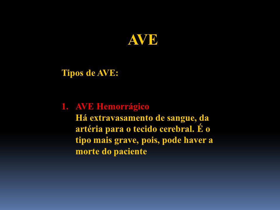 AVE Tipos de AVE: 1.AVE Hemorrágico Há extravasamento de sangue, da artéria para o tecido cerebral. É o tipo mais grave, pois, pode haver a morte do p