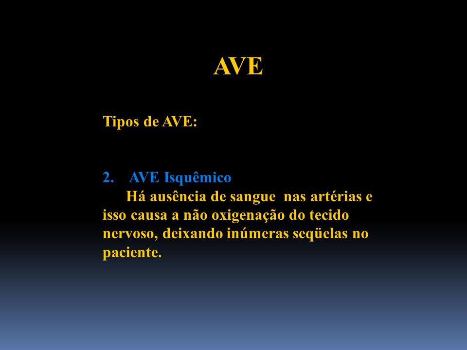 AVE Tipos de AVE: 2. AVE Isquêmico Há ausência de sangue nas artérias e isso causa a não oxigenação do tecido nervoso, deixando inúmeras seqüelas no p