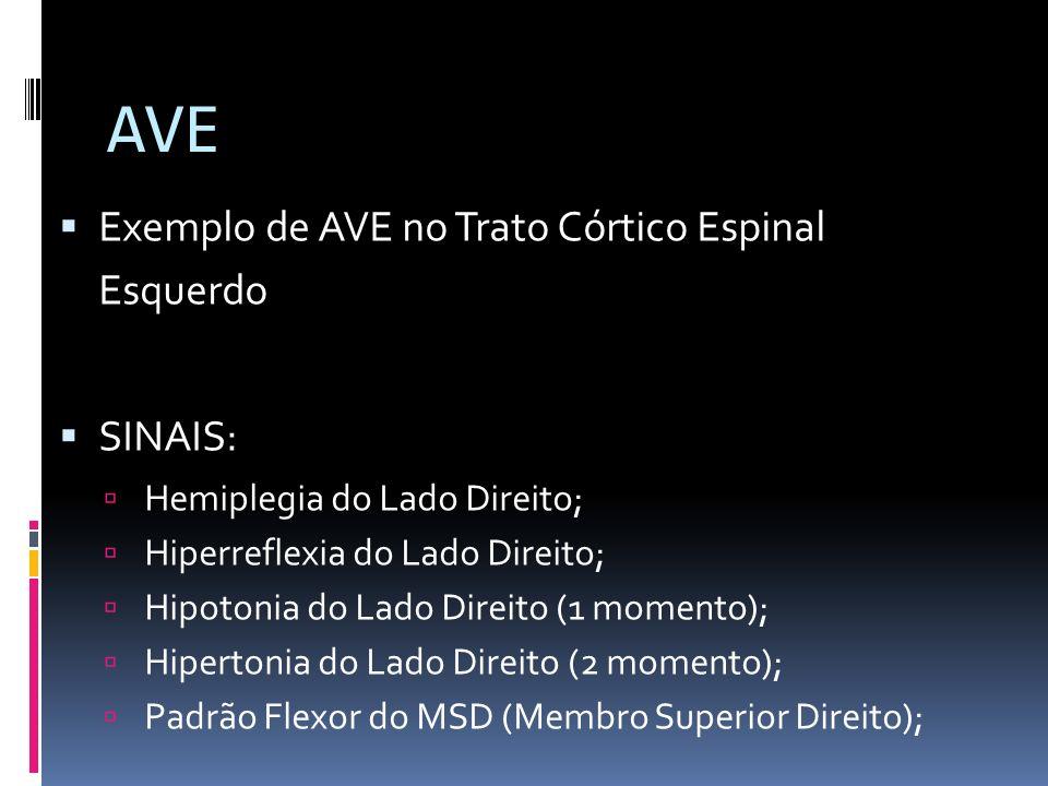 AVE Exemplo de AVE no Trato Córtico Espinal Esquerdo SINAIS: Hemiplegia do Lado Direito; Hiperreflexia do Lado Direito; Hipotonia do Lado Direito (1 m