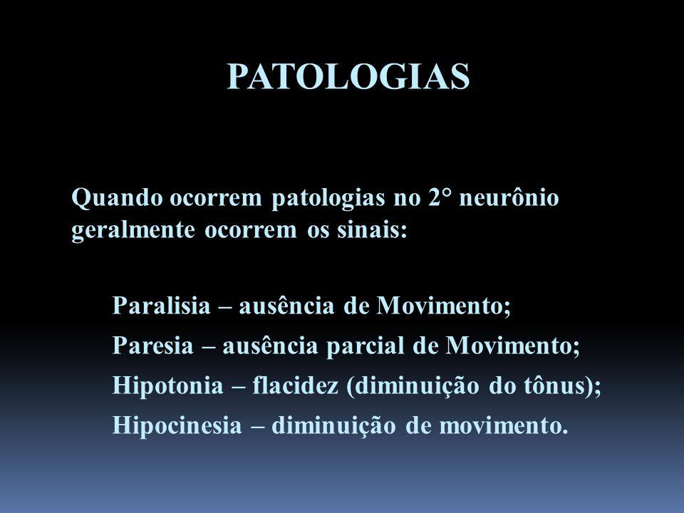 PATOLOGIAS Quando ocorrem patologias no 2° neurônio geralmente ocorrem os sinais: Paralisia – ausência de Movimento; Paresia – ausência parcial de Mov