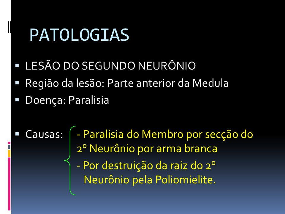 PATOLOGIAS LESÃO DO SEGUNDO NEURÔNIO Região da lesão: Parte anterior da Medula Doença: Paralisia Causas: - Paralisia do Membro por secção do 2 o Neurô