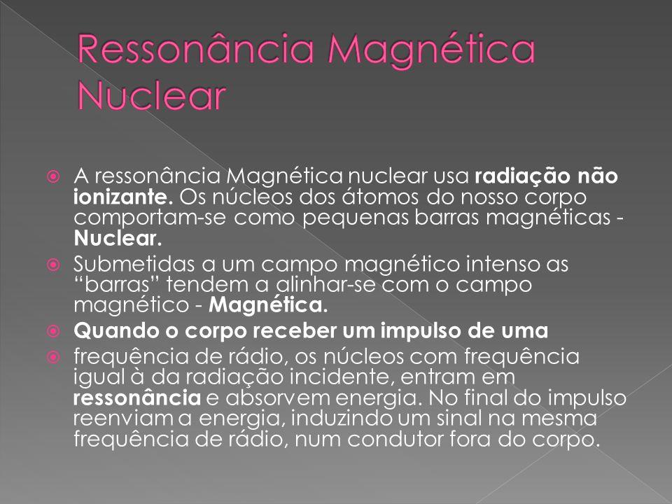 A ressonância Magnética nuclear usa radiação não ionizante. Os núcleos dos átomos do nosso corpo comportam-se como pequenas barras magnéticas - Nuclea