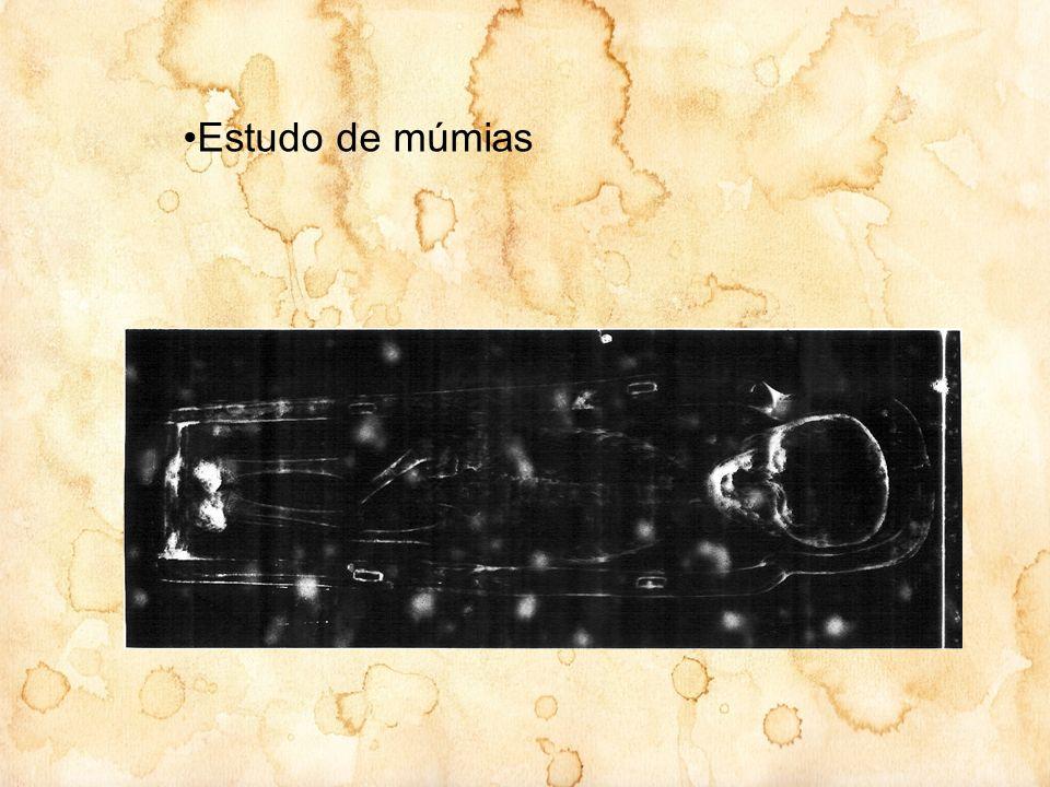 Estudo de múmias