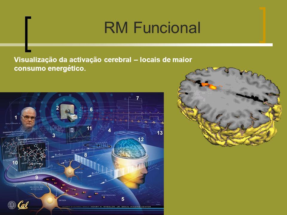 Visualização da activação cerebral – locais de maior consumo energético. RM Funcional