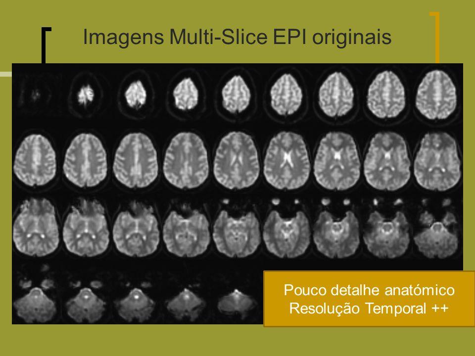 Imagens Multi-Slice EPI originais Pouco detalhe anatómico Resolução Temporal ++