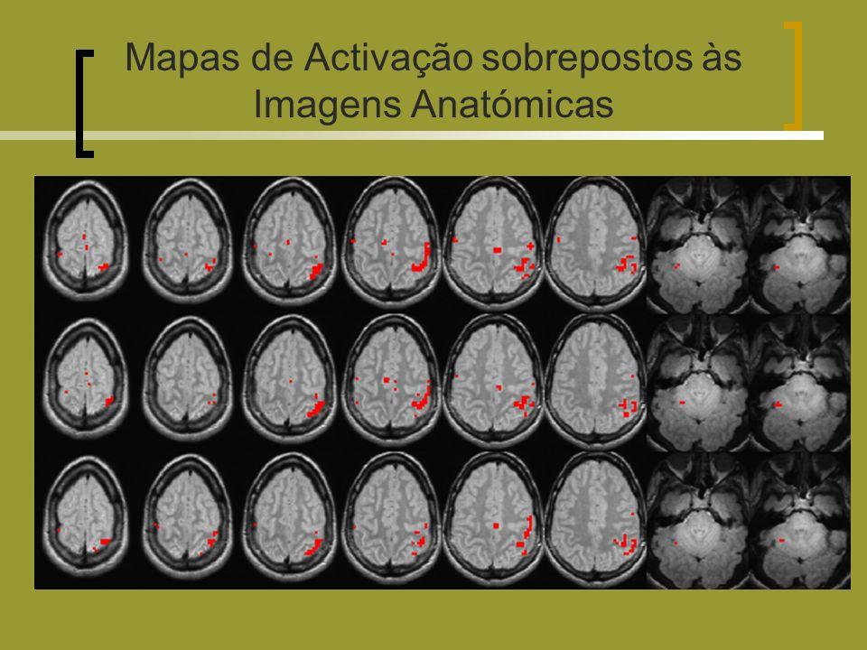 Mapas de Activação sobrepostos às Imagens Anatómicas