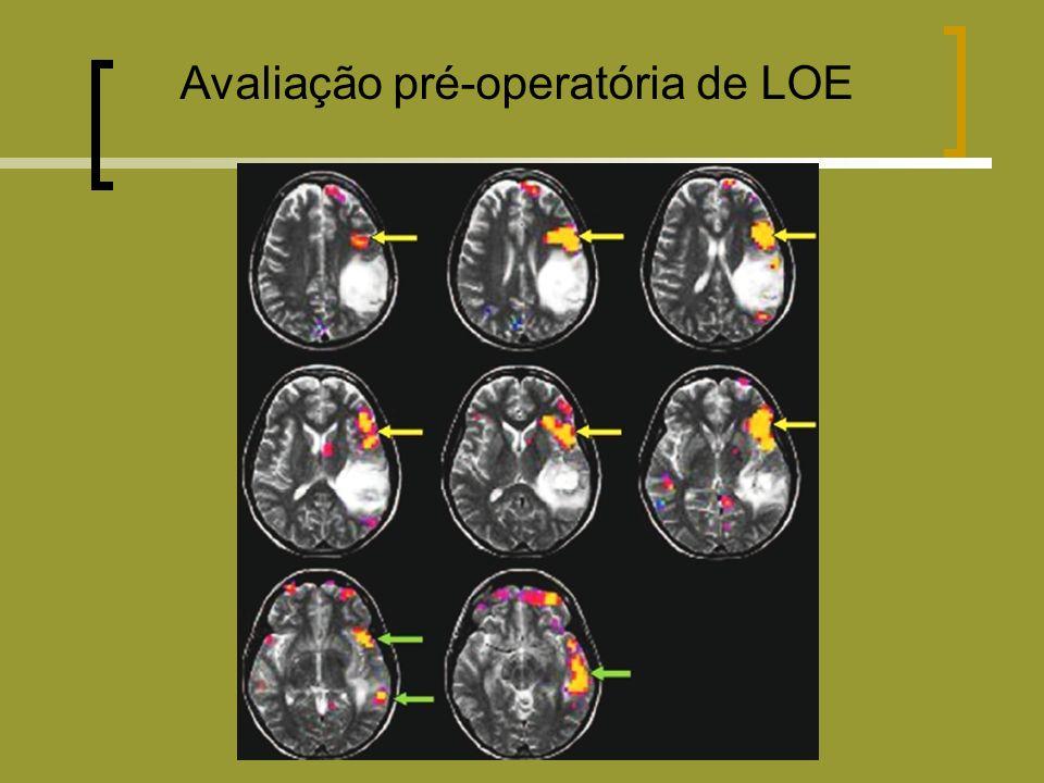 Avaliação pré-operatória de LOE