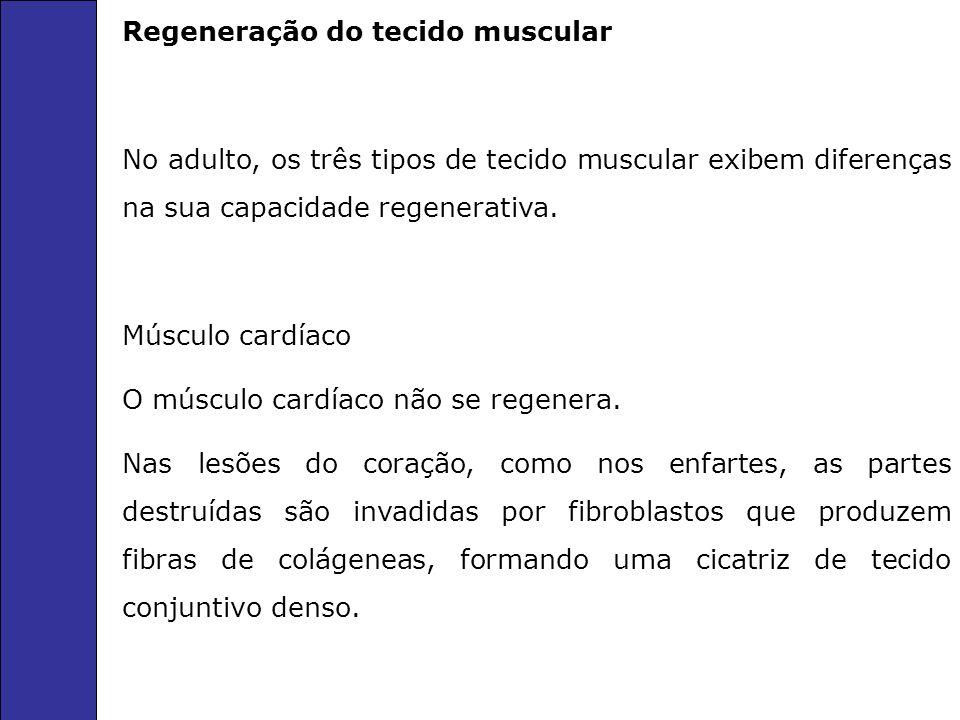 Regeneração do tecido muscular No adulto, os três tipos de tecido muscular exibem diferenças na sua capacidade regenerativa. Músculo cardíaco O múscul