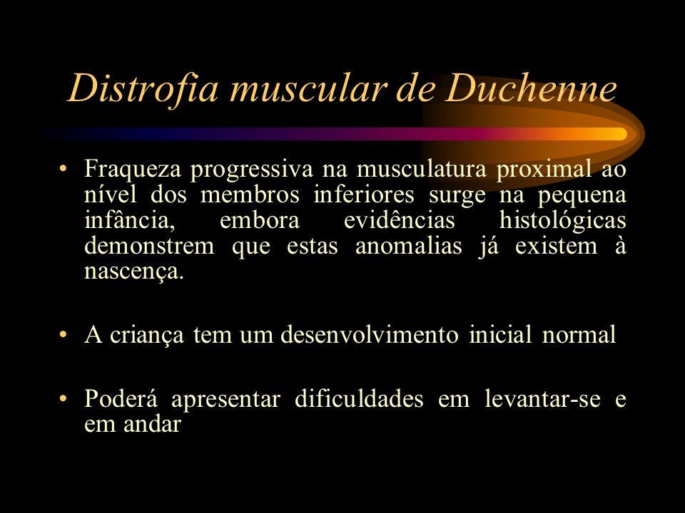 Distrofia muscular de Duchenne Fraqueza progressiva na musculatura proximal ao nível dos membros inferiores surge na pequena infância, embora evidênci