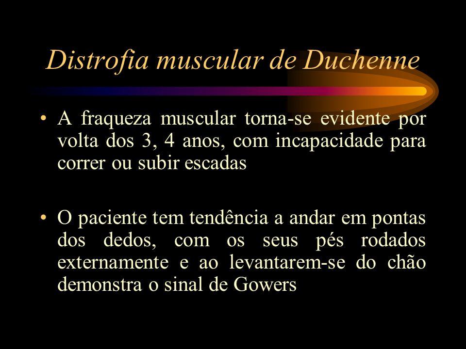 Distrofia muscular de Duchenne A fraqueza muscular torna-se evidente por volta dos 3, 4 anos, com incapacidade para correr ou subir escadas O paciente