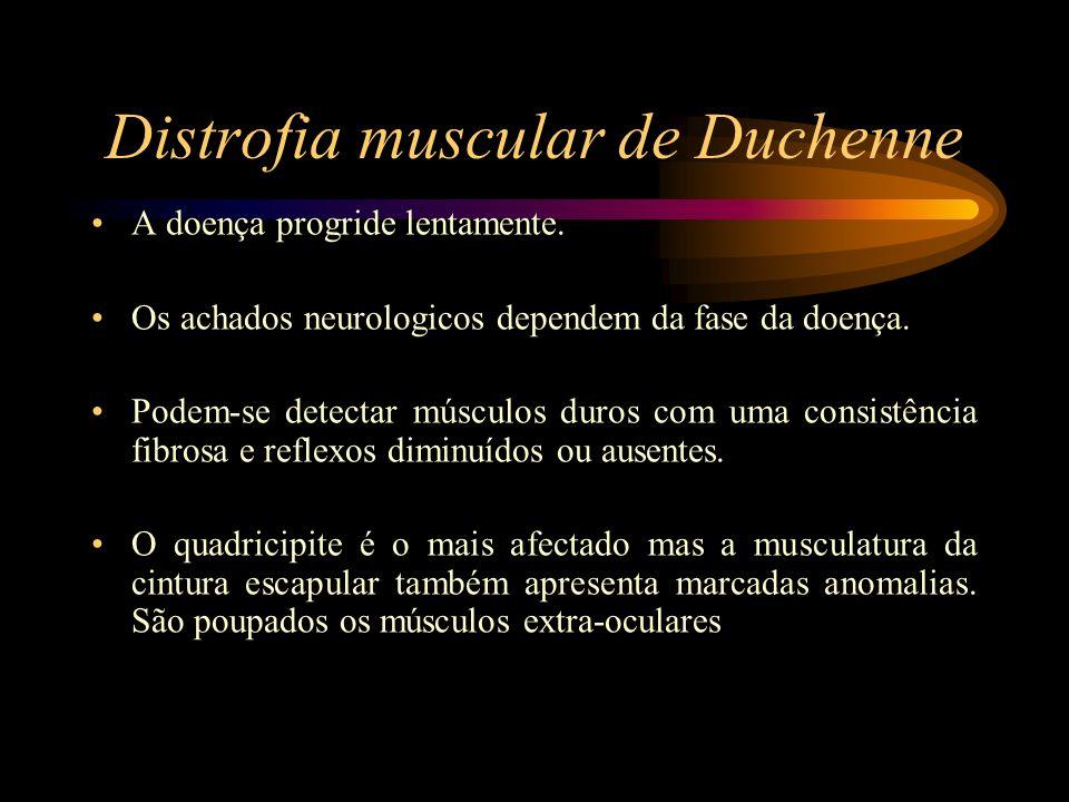 A doença progride lentamente. Os achados neurologicos dependem da fase da doença. Podem-se detectar músculos duros com uma consistência fibrosa e refl