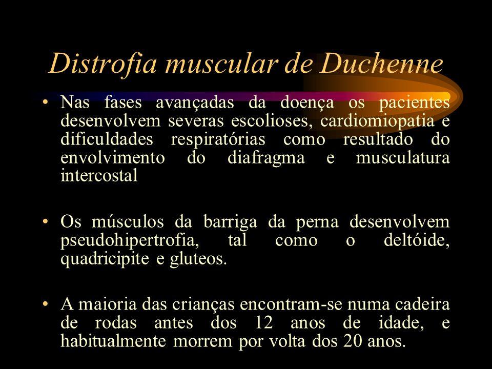 Distrofia muscular de Duchenne Nas fases avançadas da doença os pacientes desenvolvem severas escolioses, cardiomiopatia e dificuldades respiratórias