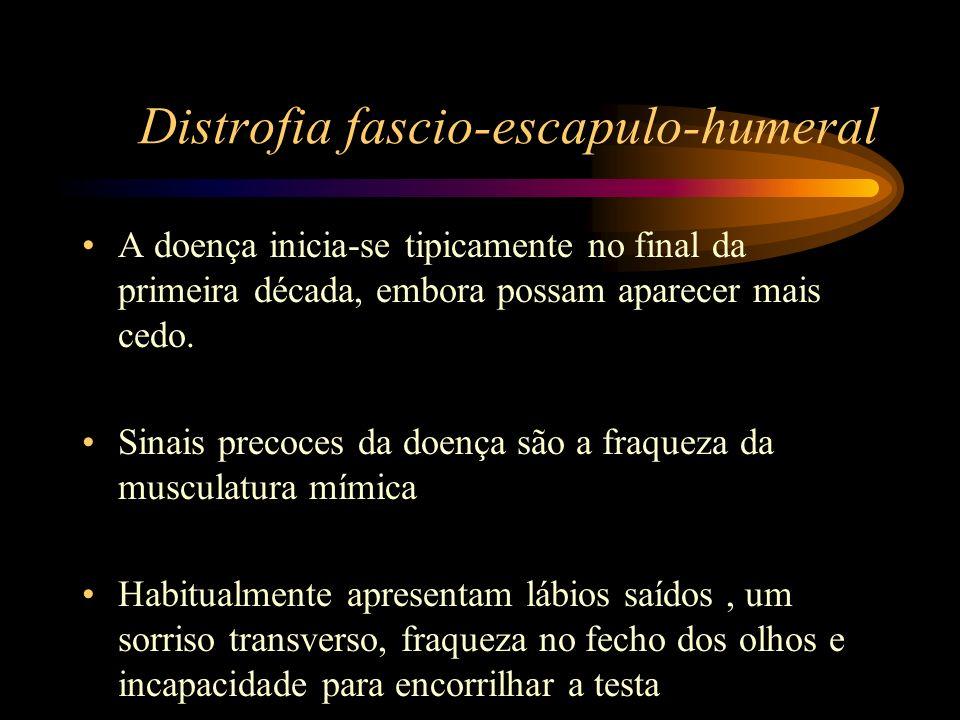 Distrofia fascio-escapulo-humeral A doença inicia-se tipicamente no final da primeira década, embora possam aparecer mais cedo. Sinais precoces da doe